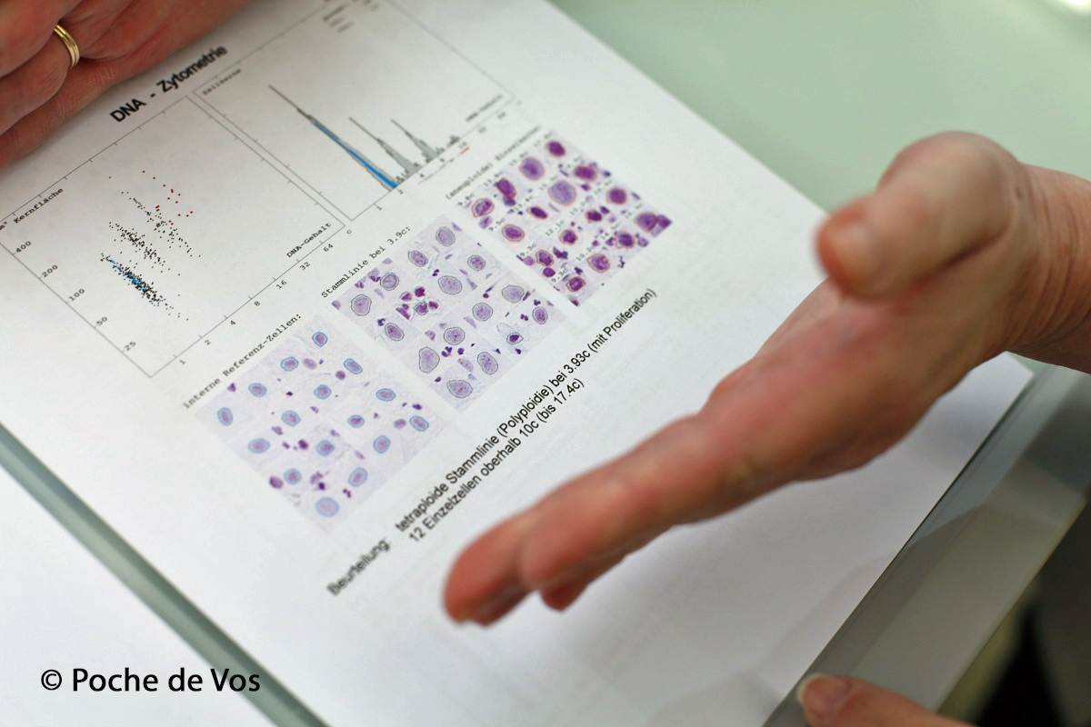 DNA Bild Zytometrie PDV